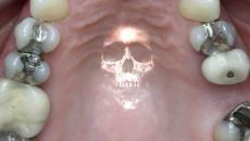 your_teeth_might_be_killing_you_with_mercury_nathaniel_cruz_355890_highres.jpg