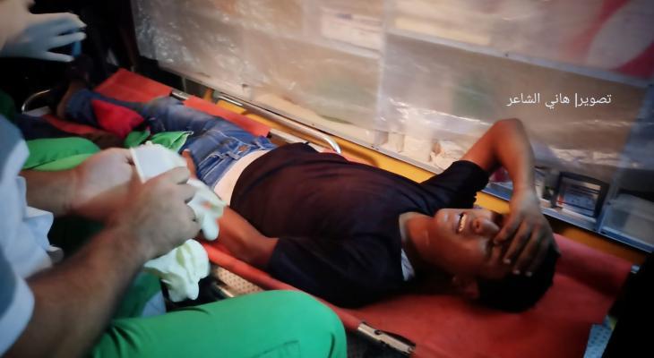 صورة أحد المصابين