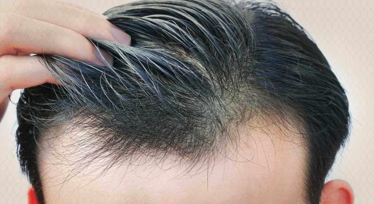 زراعة شعر.jpg