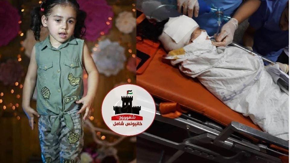 اصابة الطفلة عايدة البلبيسي من موقع خانيونس.jpg